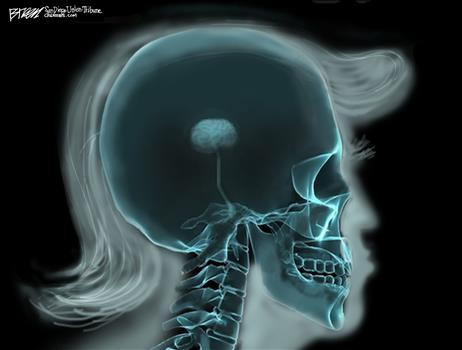 Trump's Brain